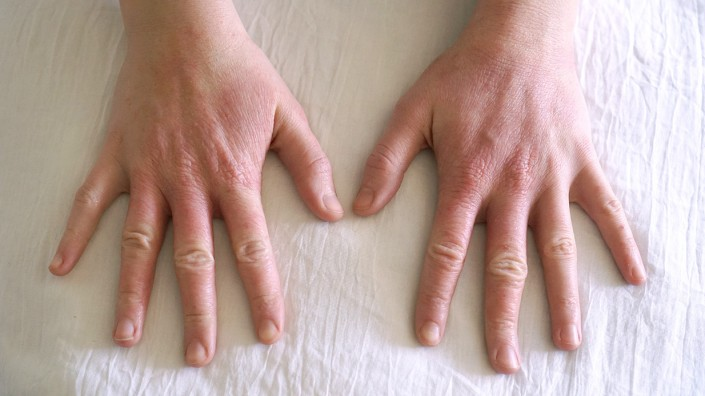 eczema-free