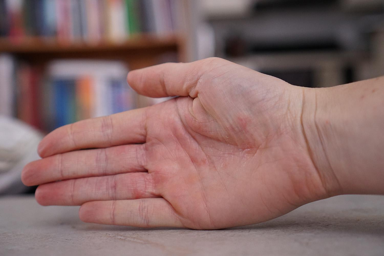 hand eczema healed
